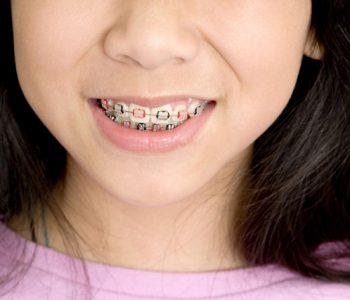 Tendance : l'appareil dentaire, dernier accessoire mode en Asie ?