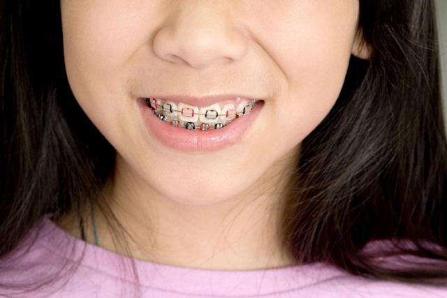 appareil dentaire asie